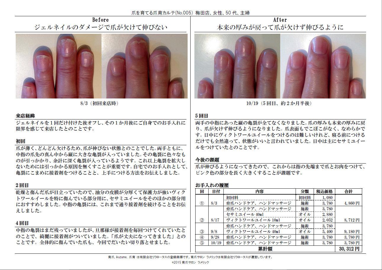 爪育カルテNo.005:ジェルネイルのダメージで爪が欠けて伸びない