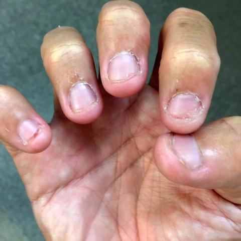 爪噛み断ち初日の右手の爪の写真