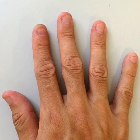 爪噛み断ち3日目の右手の爪の写真