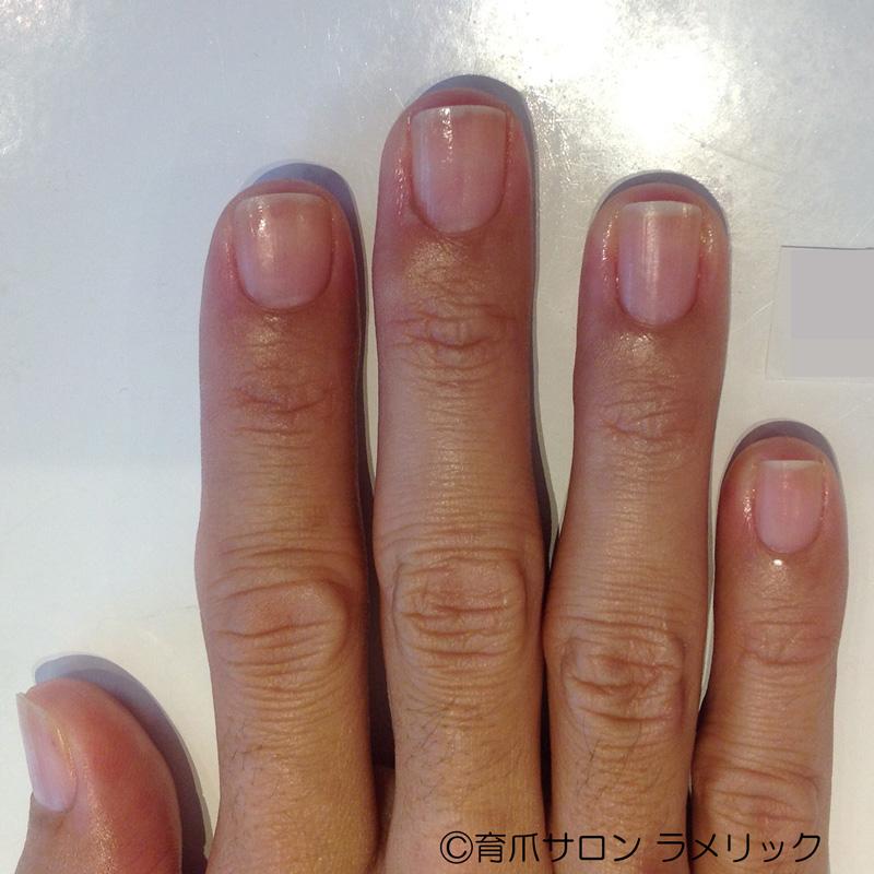 爪噛み断ちから9か月後の右手の爪の写真