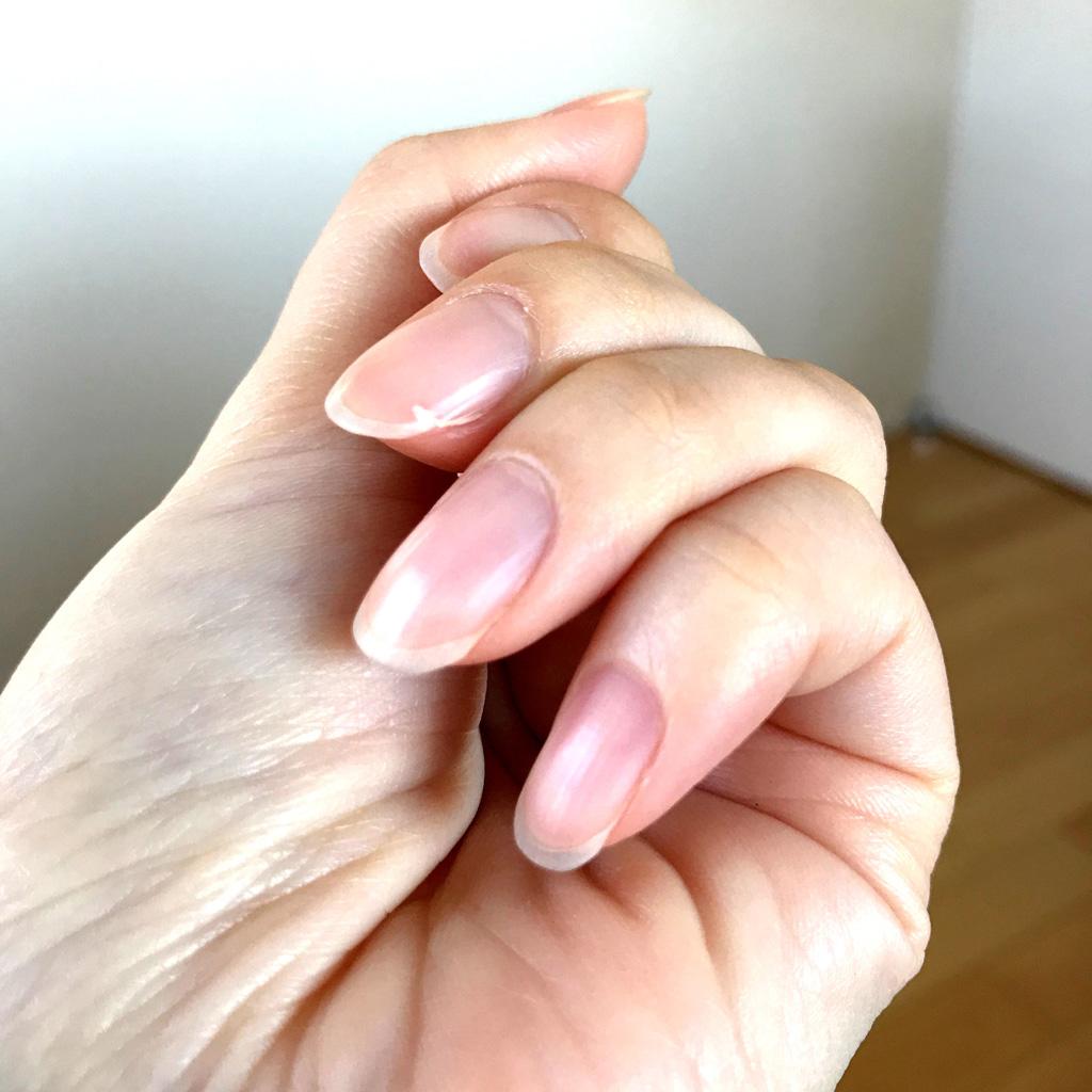 爪のひび割れ・亀裂の写真と応急処置