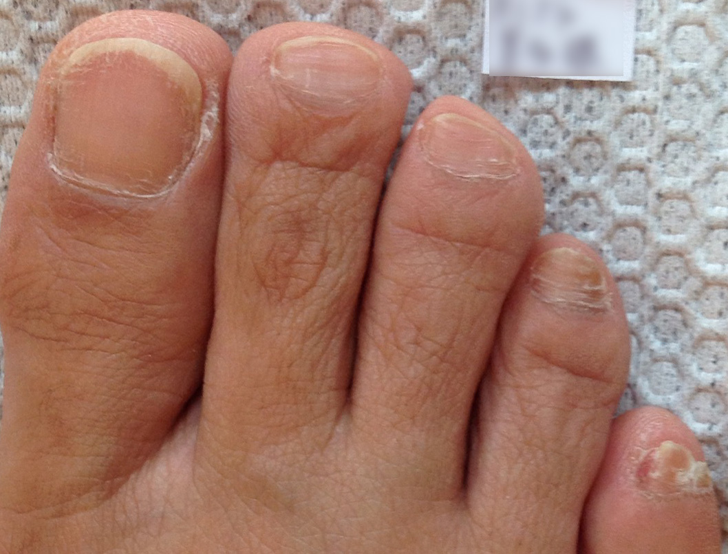 二枚爪・横線・甘皮肥大がある足の爪