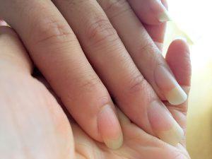 ラメリックの妻、ヒゲラメの爪