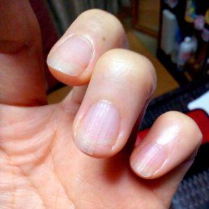 左手薬指の爪が欠けた