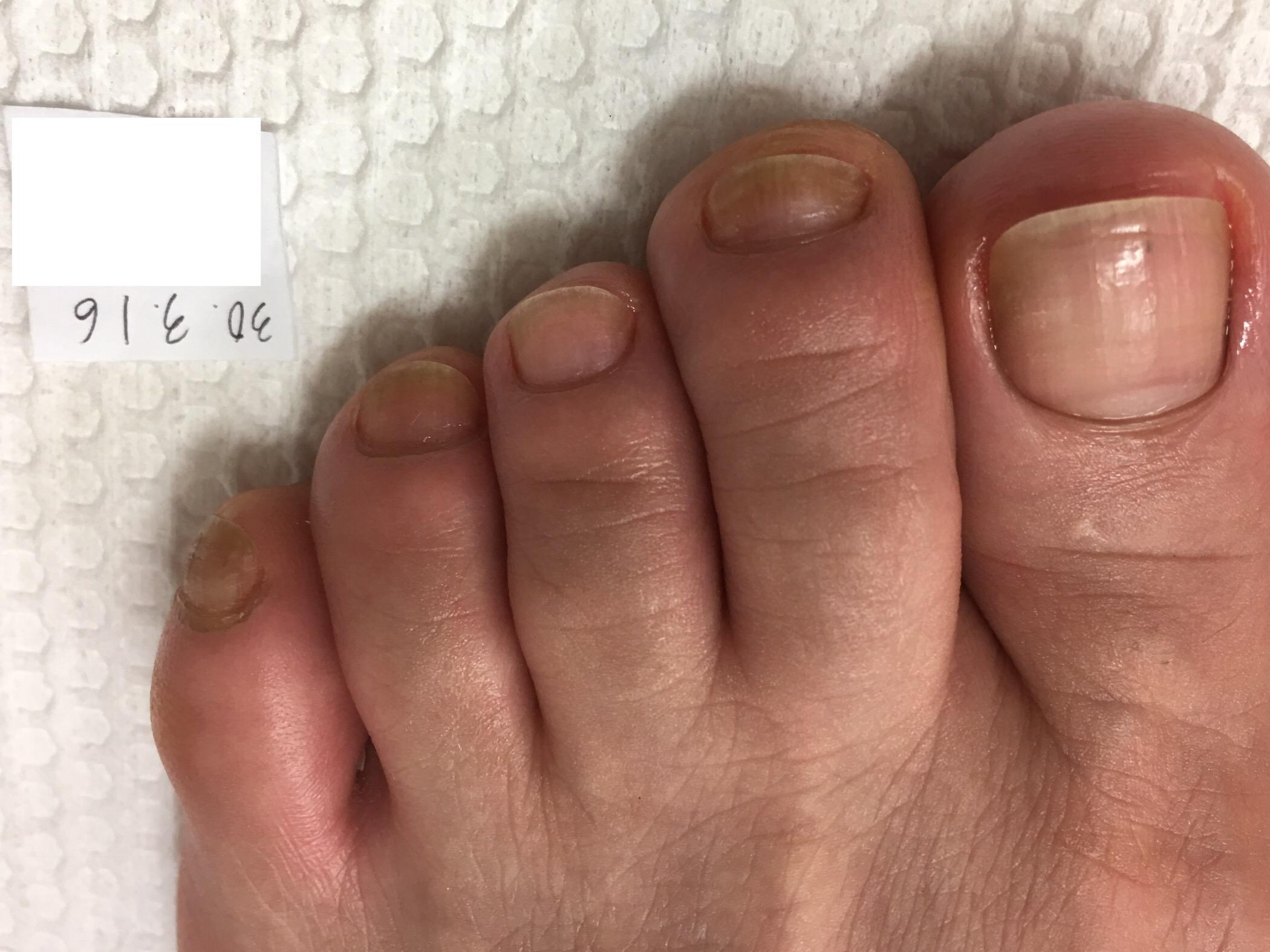 黒い 足 の 爪