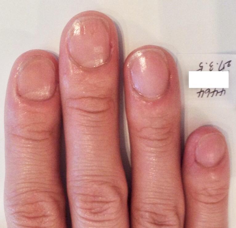 幼少期からの爪噛み癖が治った 育爪アフター