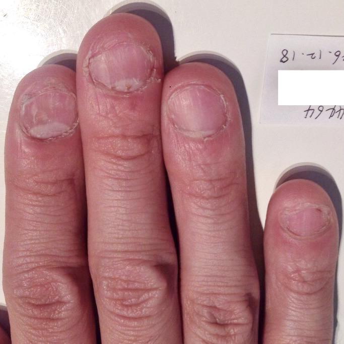 幼少期からの爪噛み癖 育爪ビフォー