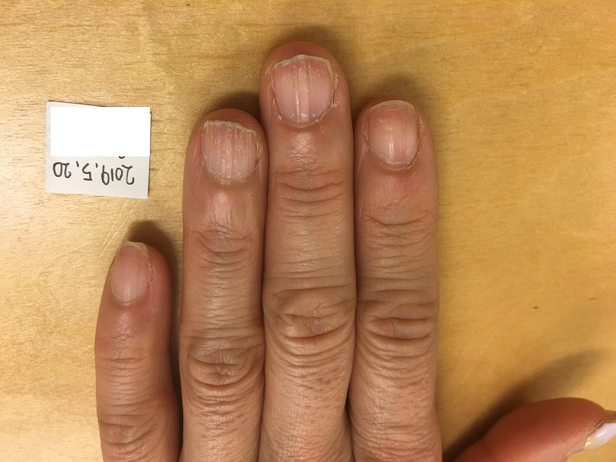 欠け た 爪 ジェル ネイル