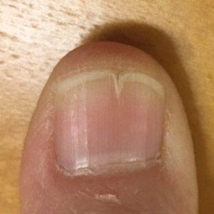 爪先がひび割れる、爪先端に亀裂が入る