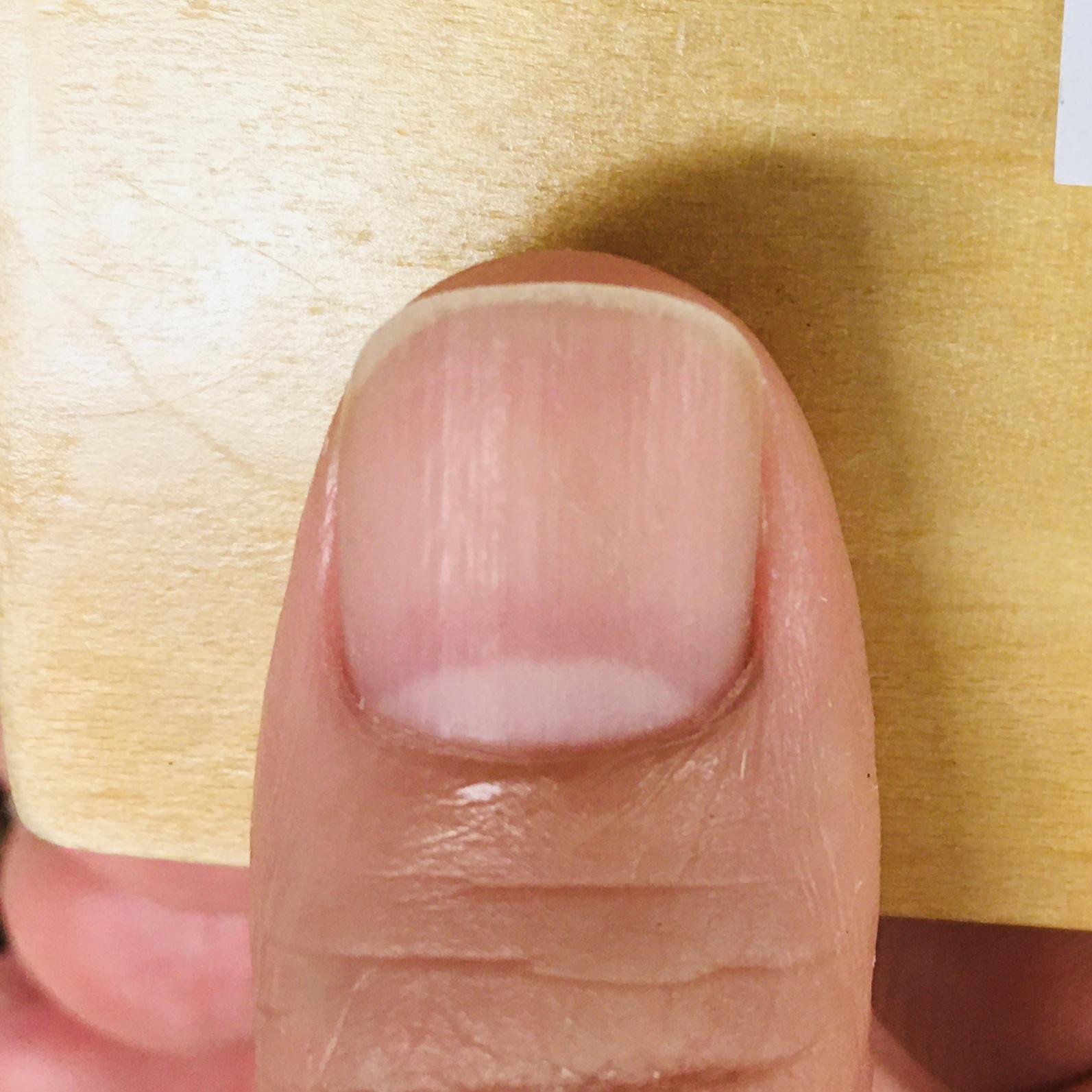 右手 親指:育爪カット アフター(アークスクエアに整えました)