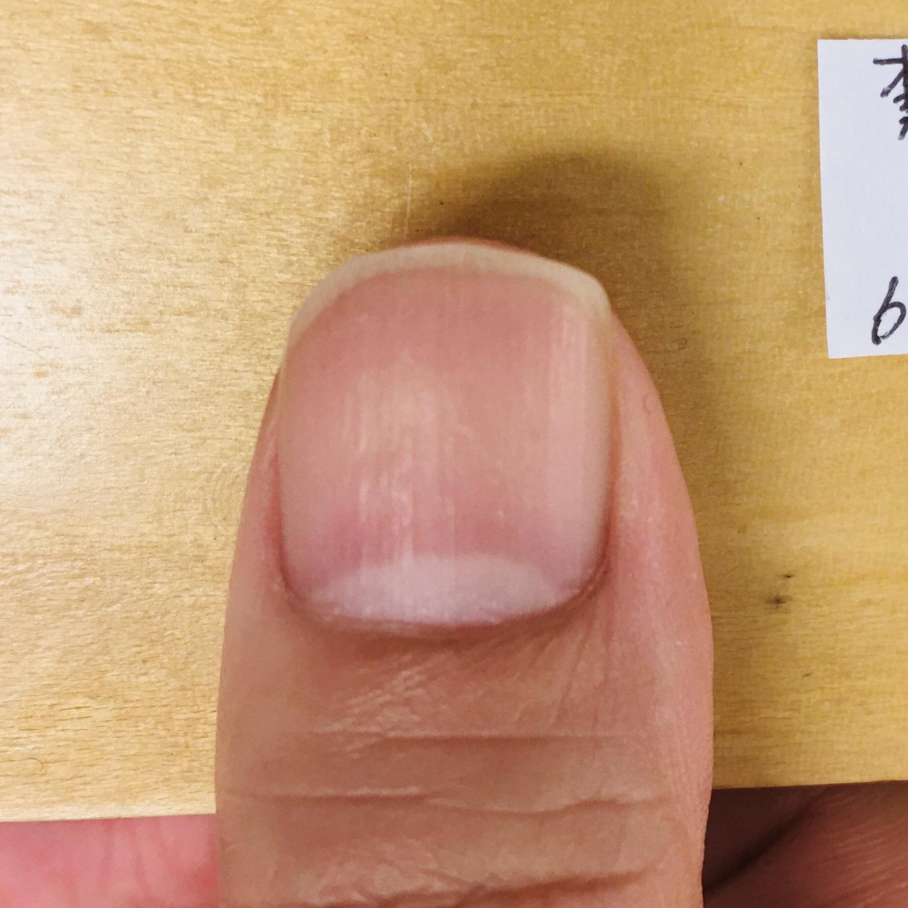 右手 親指:育爪カット ビフォー