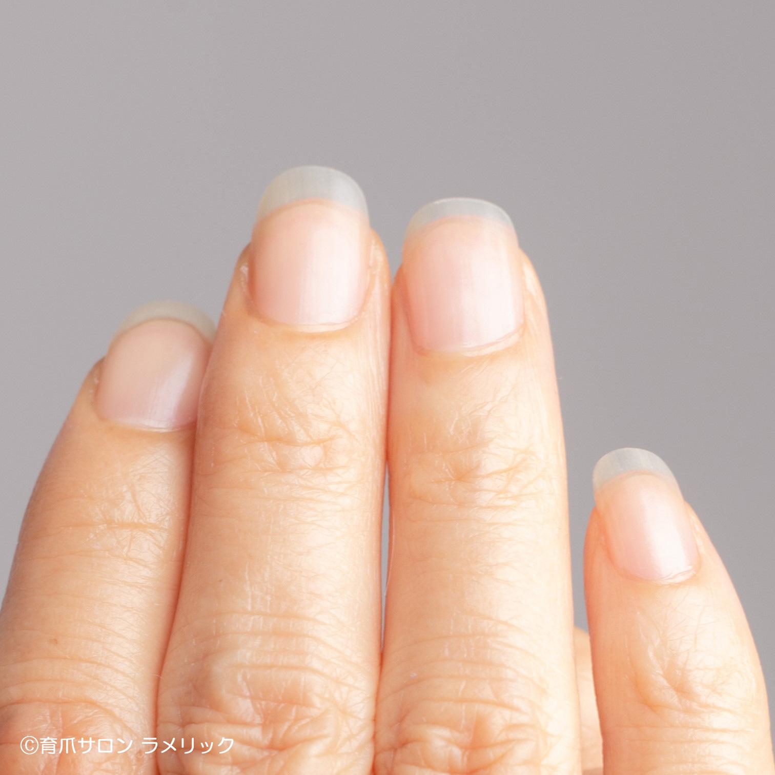 指の先端まで伸びたネイルベッド(ピンクの部分)
