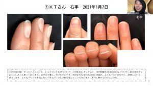 育爪セルフケア・オンライン練習会